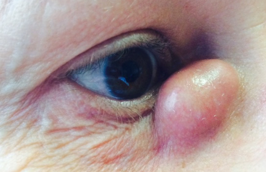 Chronic right dacryocystitis: enlarged volume of the lacrimal sac with obstruction of the nasolacrimal duct